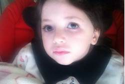 adelle biton, 3 year old rock attack victim